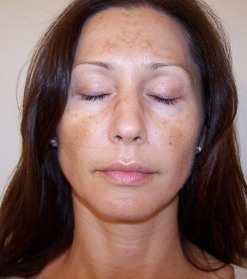 Facial skin pigment