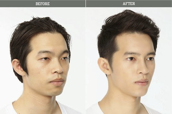Lumberjack reccomend Asian male rhinoplasty