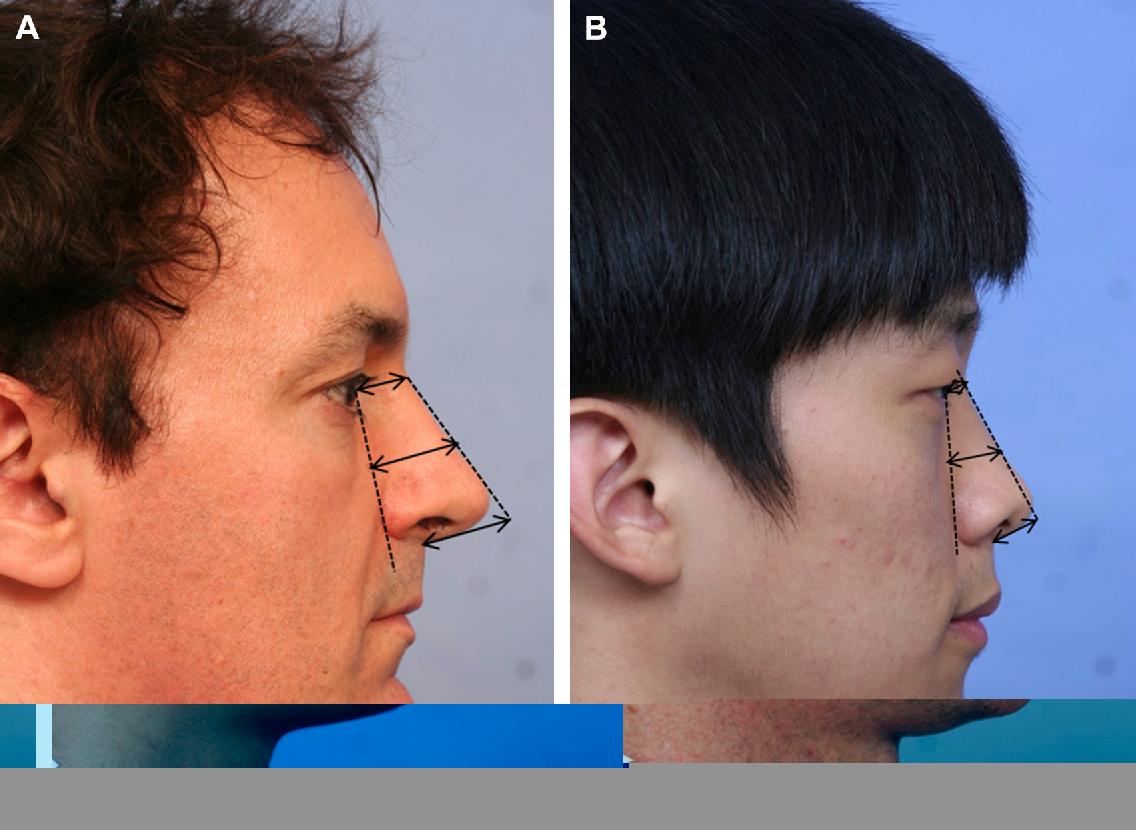 Fox reccomend Asian male rhinoplasty