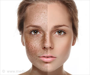 Susie Q. reccomend Facial skin pigment