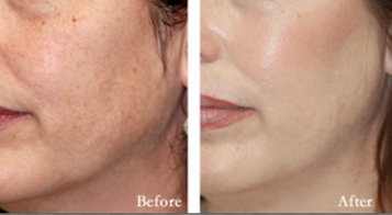 Skin damage caused by facial peels